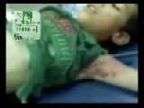 Libyan Boy Impaled With An Iron Bar! GRAPHIC