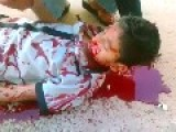 A Young Boy Shot By Bashar Al-Assad S Troops GRAPHIC