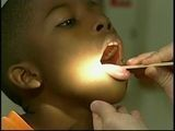 Are Tonsils Causing ADHD?